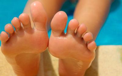 ¿Por qué afectan más los hongos de los pies en verano?